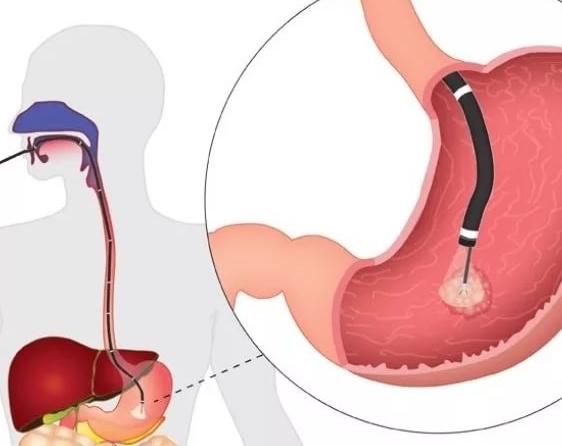 Тяжесть и тошнота в желудке причины