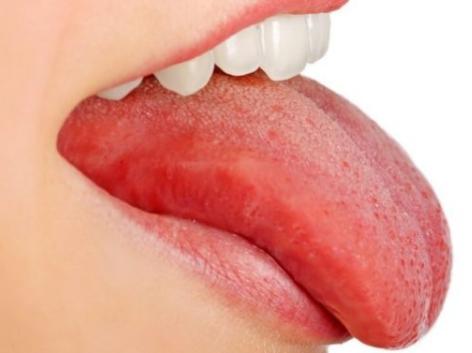 Белая точка на языке и болит — отчего, что делать, чем лечит