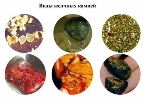 Камни в желчном пузыре от чего образуются? Как быстро образуются камни в желчном пузыре