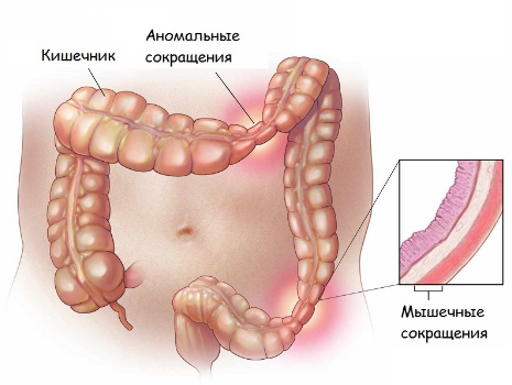 Язвенный колит кишечника: симптомы и лечение народными средствами