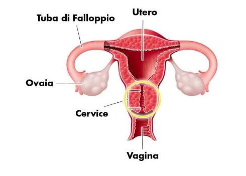 Как вылечить вагинальный дисбактериоз