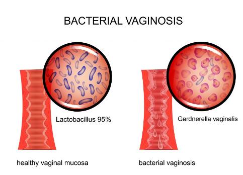 Дисбактериоз в гинекологии симптомы у женщин: лечение половых органов
