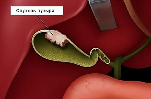 Рак желчного симптомы и лечение