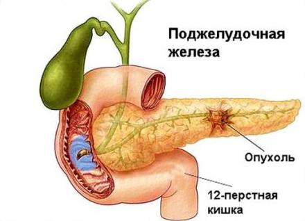 Сколько можно прожить при раке поджелудочной железы