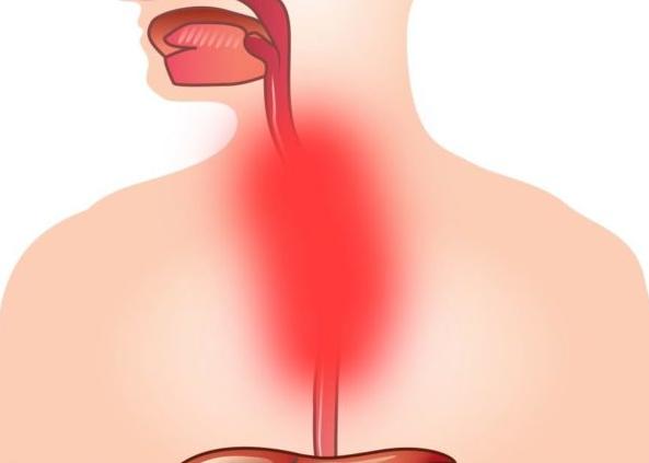 Боль в пищеводе - Болит пищевод в грудной части что делать и ощущение кома при глотании: как болит у человека и его симптомы и причины