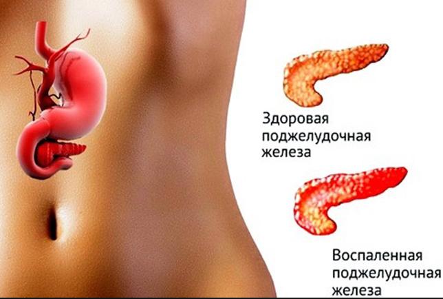 У ребенка увеличена поджелудочная железа причины диагностика лечение профилактика