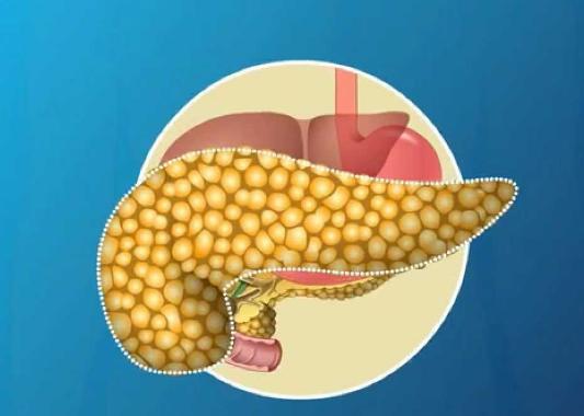 Поджелудочная железа диффузно-неоднородная норма или патология