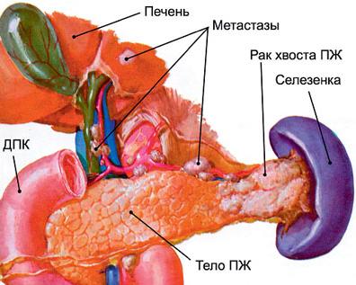 Эффективное лечение рака поджелудочной железы