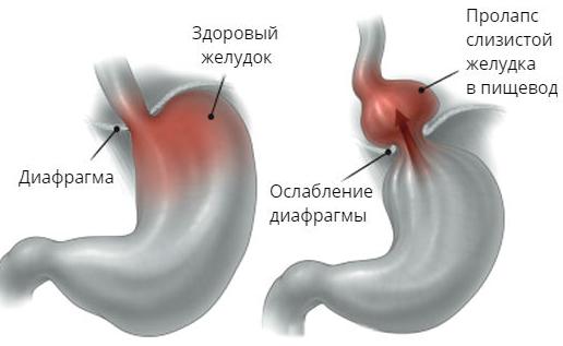 Пролапс слизистой желудка в просвет пищевода — Заболевание желудка