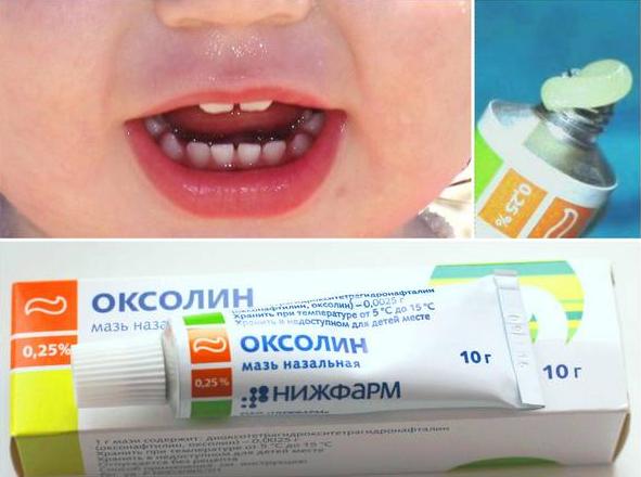 Оксолиновая мазь при стоматите у детей: оксолин при стоматите