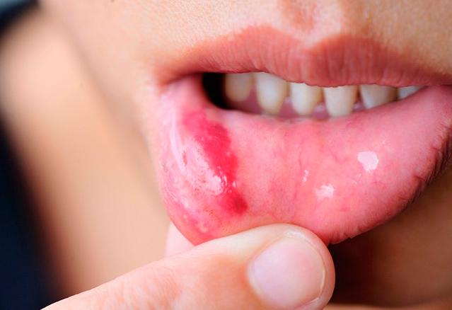 Причины хронического стоматита у взрослых