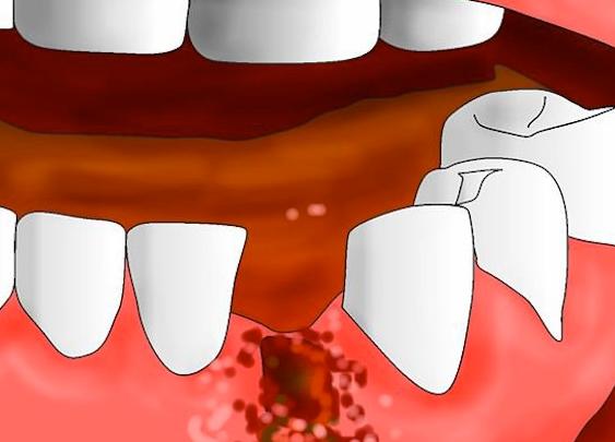 Стоматит после удаления зуба и после зуба мудрости: лечение у стоматолога
