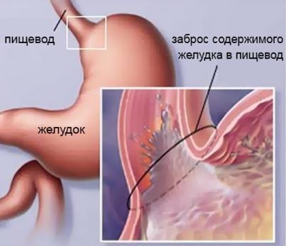 геморрой симптомы лечение народными средствами