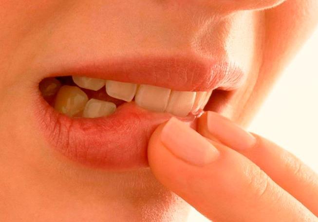 Стоматит заразен или нет - Заразен ли и как передается у детей во рту