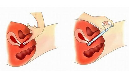 Свечи для лечения вагинального кандидоза